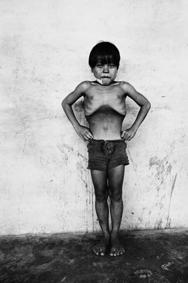 Roger BallenBlown up boy, East Malaysia, 1976aus der Serie Boyhood© Roger Ballen