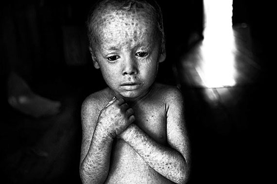 Lucas Techeira wurde mit einer unheilbaren Hautkrankheit geboren, verursacht durch einen Gendefekt, Argentinien, 2014© Pablo E. Piovano