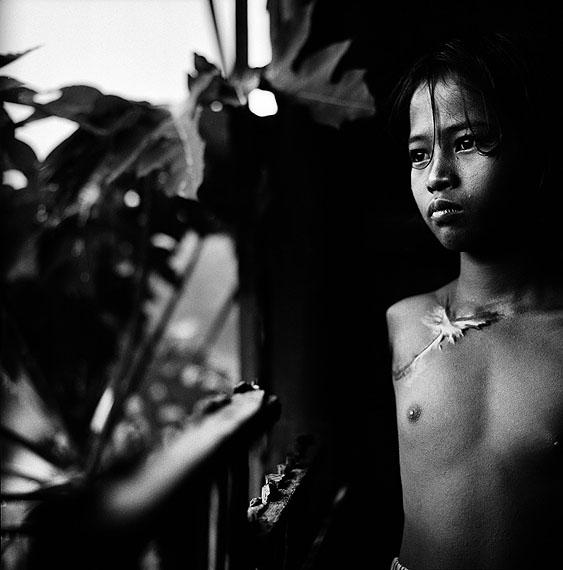 © Paolo Pellegrin/Magnum Photos/Contrasto. Mädchen, das seinen Arm bei der Arbeit in einer Ziegelfabrik verlor. Phnom Penn 1998